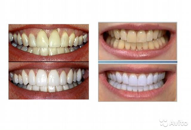 Crest 3d white whitestrips dental whitening